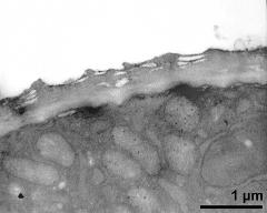apertural area of pollen wall