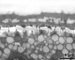 interapertural area of pollen wall