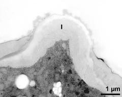 apertural area of pollen wall, intine (I)
