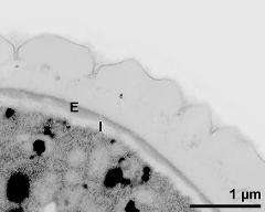 interapertural area of pollen wall, intine (I), endexine (E)