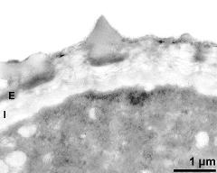 apertural area of pollen wall, intine (I), endexine (E)