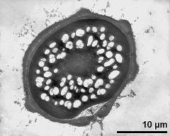 pollen grain in cross section