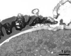 pollen wall at transition of aperture and interapertural area